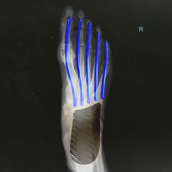 https://assets.adidas.com/images/w_600,f_auto,q_auto/051d9d0de7904e648b11abd701160ed5_9366/Adizero_Adios_Pro_Running_Shoes_White_FX1765.jpg